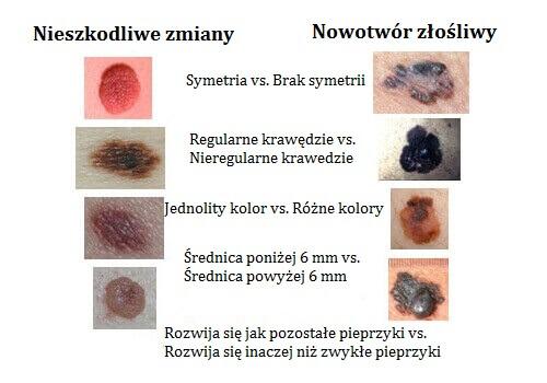 nowotwory skóry Gdańsk
